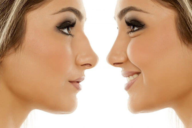 How-Long-Rhinoplasty-Take